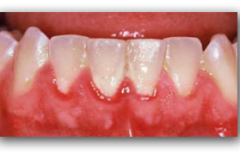 Placca-sui-denti