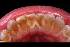 Tartaro-sui-denti